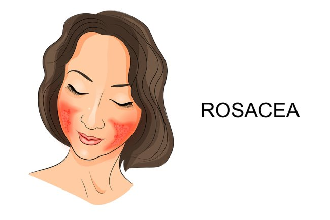 Illustration of a women,Rosacea