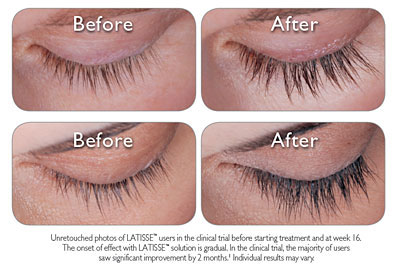 Eyelashes Before and After Preview