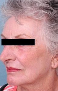 Erbium Yag Laser Resurfacing after