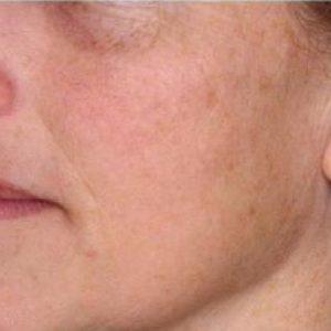 After Erbium Yag Laser Resurfacing by Swinyer-Woseth Dermatology