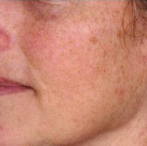 Erbium Yag Laser Resurfacing before