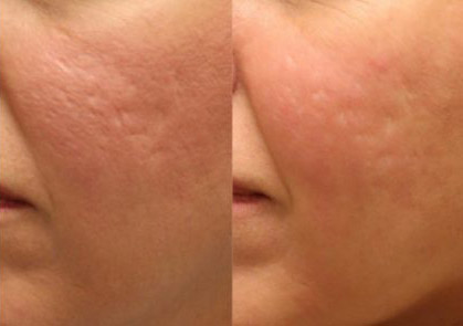 Platelet Rich Plasma (PRP) + Microneedling before and after