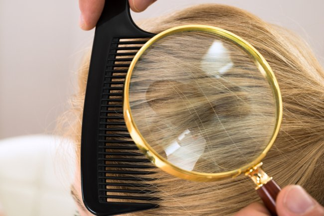 Talking care of Your Dermatologist About Hair Loss