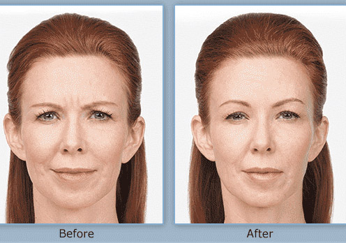 botox before and after in Salt Lake City