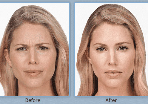 botox before and after image by Swinyer-Woseth Dermatology