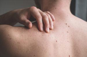 Understanding the Moles on your Skin