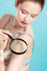 How to Do a Self-Exam of Your Skin