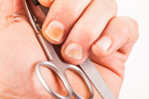 Spotlight on Nail Diseases and Treatments