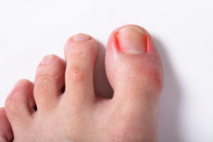 How to Prevent or Treat Ingrown Nails